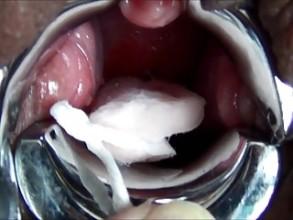 Cervix Porn Videos: Free Sex Tube xHamster